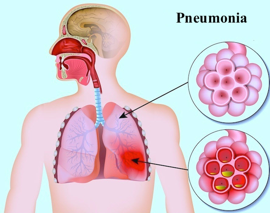 عفونت ریه