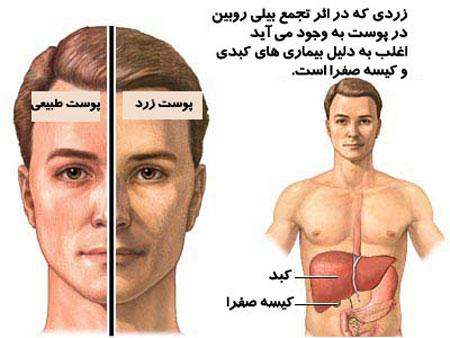 درمان بیماری یرقان