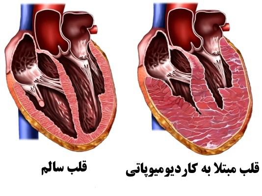بیماری کاردیومیوپاتی