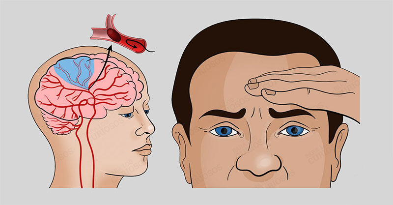 سردرد کرونایی