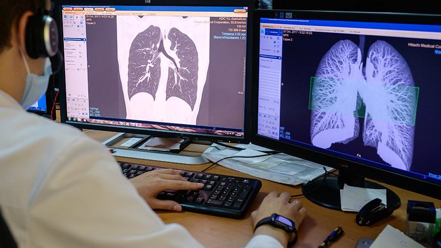 رادیولوژی برای تشخیص کرونا