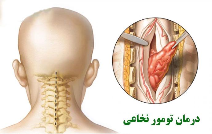 تومور طناب نخاعی