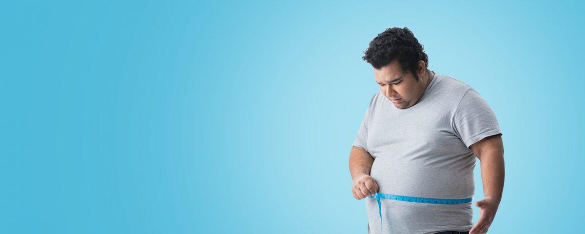 جراحی چاقی