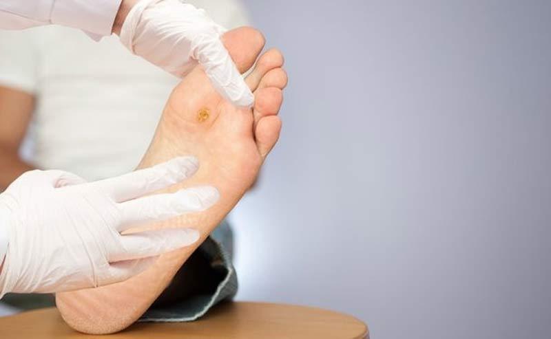 زخم پای دیابتی درمان