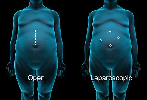 انواع جراحی چاقی