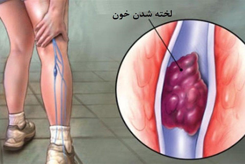 علائم لخته خون در بدن چیست؟