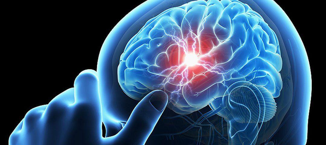آنوریسم مغزی